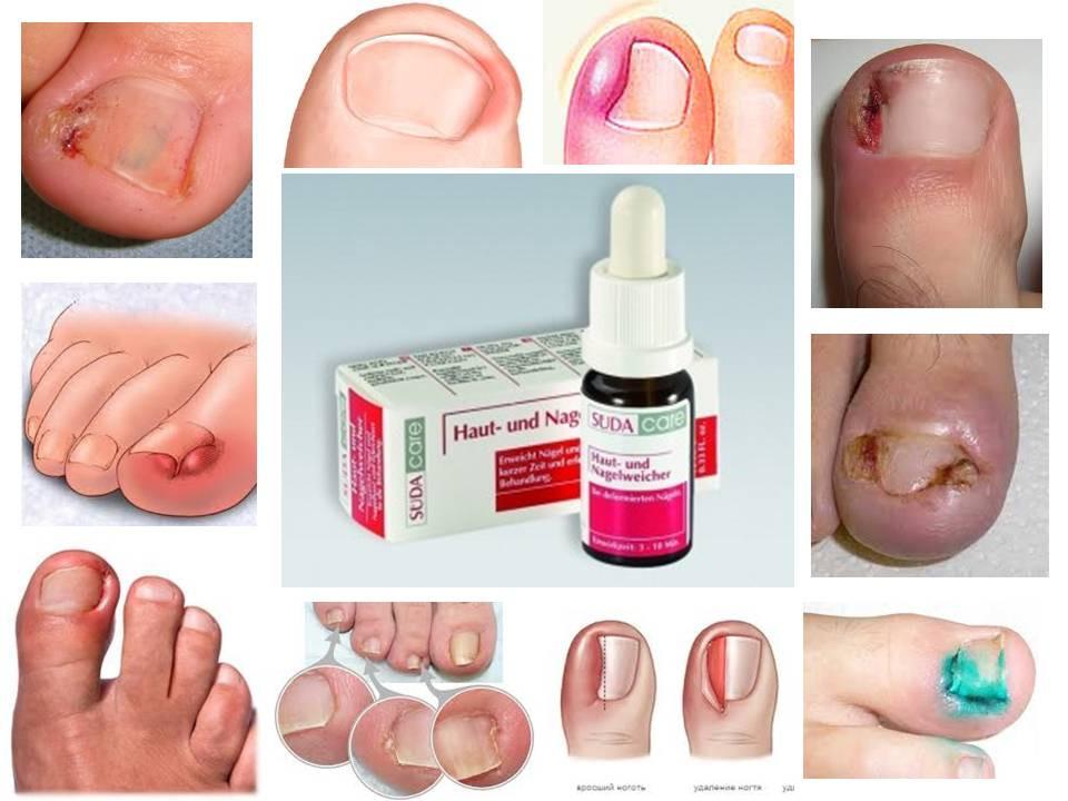 средство для вросшего ногтя, вросшие ногти, вростает ноготь, вросший ноготь